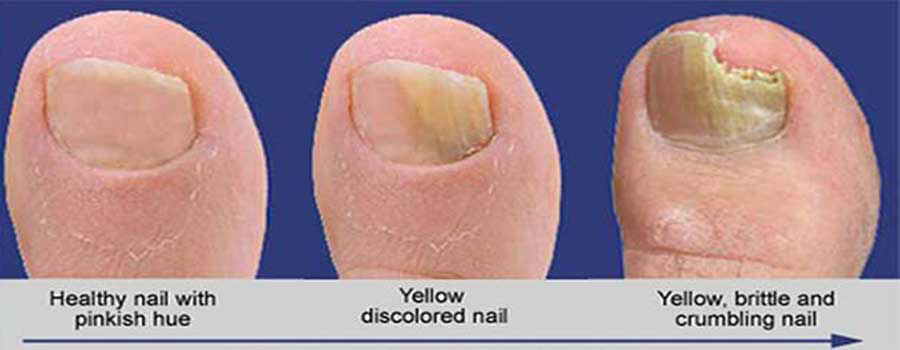 Top 5 Pedicure Infections
