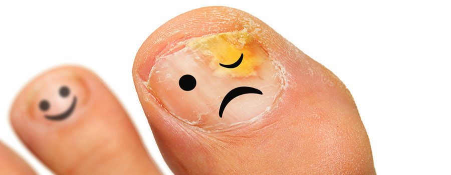How To Avoid Infection From Pedicure